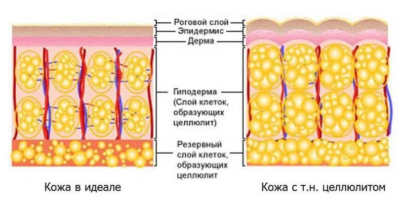 причины возникновения целлюлит