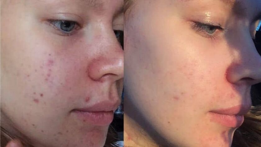 Диета для очищения кожи